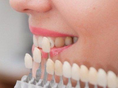 Diş ve Diş Eti Estetiği